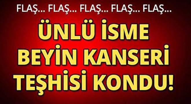 ÜNLÜ İSME BEYİN KANSERİ TEŞHİSİ KONDU SEVENLERİ ŞOKE OLDU