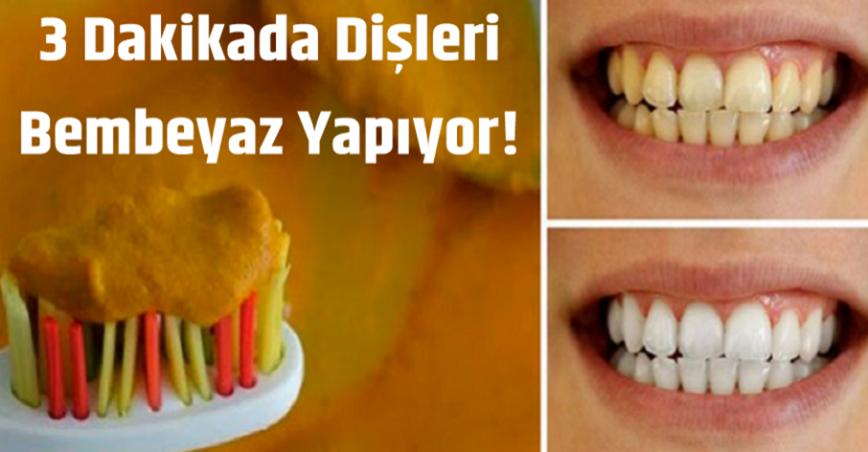 Sarı Durduğuna Bakmayın. 3 Dakikada Dişleri Bembeyaz Yapıyor!