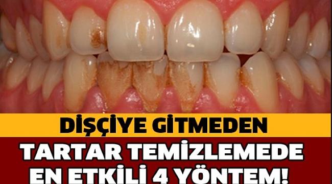 Diş Tartarlarından Kurtulmanın En Kolay Yolu
