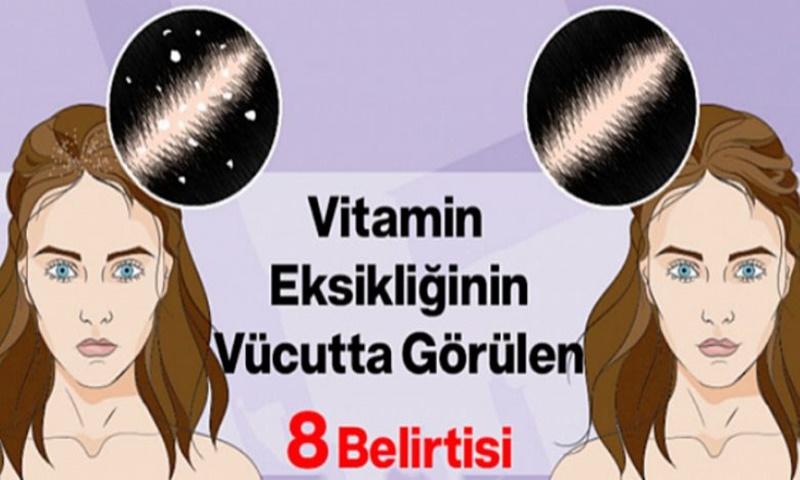 Vitamin Eksikliğinin Vücutta Görülen 8 Belirtisi